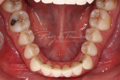 Invisalign-despues-inf