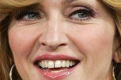 ortodoncia invisible noticias