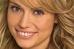 ortodoncia invisible famosos