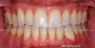 Ortodoncia lingual después