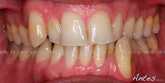 Ortodoncia lingual antes