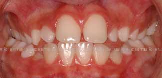 Mordida cruzada dientes pequeños antes
