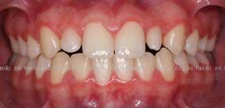 Mordida cruzada dientes pequeños tras ortodoncia