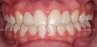 Mordida cruzada dientes pequeños después