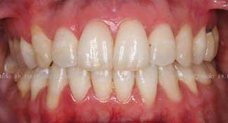 Ortodoncia Lingual. Mordida abierta y apiñamiento frontal después