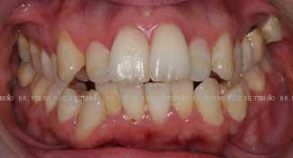 Ortodoncia Lingual. Mordida abierta y apiñamiento antes