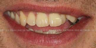 Ortodoncia lingual Sonrisa Antes
