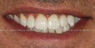 Ortodoncia lingual sonrisa despues