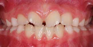 Primera fase temprana dientes torcidos antes