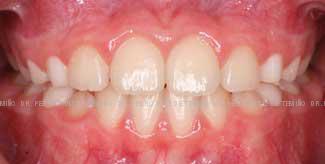 Primera fase temprana dientes torcidos después